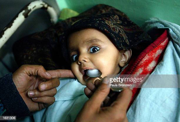 A blind eightmonthold baby suffering from menengitis is spoon fed milk by her mother in the Intensive Care Unit at Indira Ghandi Hospital November 13...