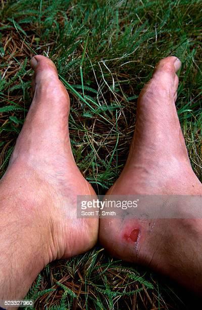 Blister on Hiker's Heel