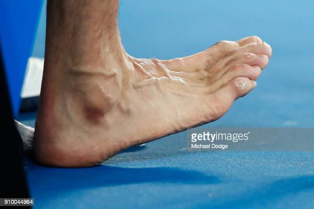 Blisters are seen on the foot of Marin Cilic of Croatia in his semifinal match against Kyle Edmund of Great Britain on day 11 of the 2018 Australian...