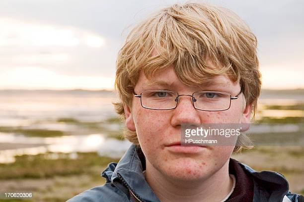 A blond male teenager with glasses and pimples