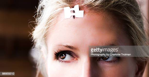 blonde woman with a cut on her head - medical stitches stock photos and pictures