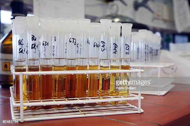 Blood and urin samples are seen at the Doping Control Laboratory of the Biochemical Institute at the University for Sports on August 19 2008 in...