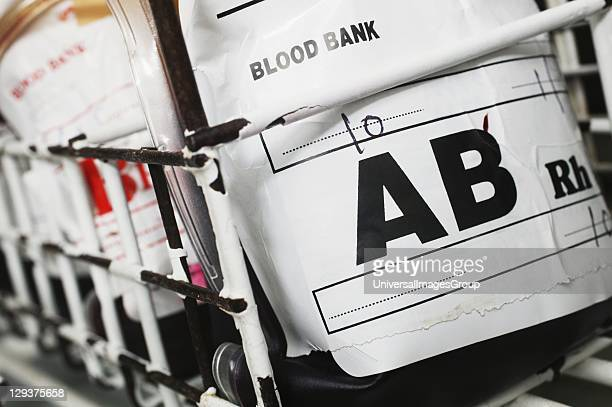 A blood bag containing group AB blood Blood group AB contains both A an B antigens and has no Antibodies present
