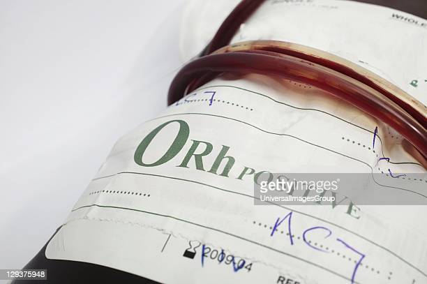 Blood bag containing type O blood O blood contains no antigens and has both antia and antib antibodies present There is also a presence of RhD...