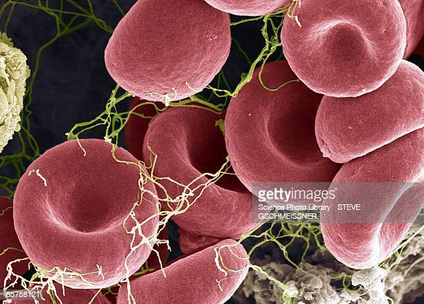 blood clot, colored scanning electron micrograph (sem) - blood clot stock pictures, royalty-free photos & images