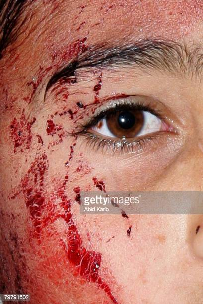 Blood cover the face of a wounded palestinian boy as he waits to get treatment at the hospital after Israeli missiles hit the house of the Islamic...