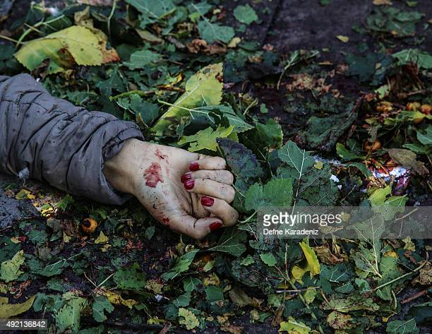 Blood covered hand of a victim is seen at the blast scene after an explosion during a peace march in Ankara October 10 2015 Turkey Turkish Health...