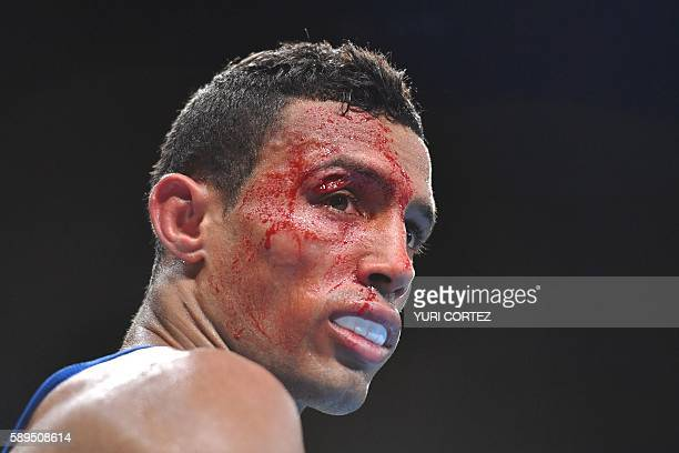 TOPSHOT Blood covers Tunisia's Bilel Mhamdi's face following an injury during the Men's Bantam match against Argentina's Alberto Ezequiel Melian at...