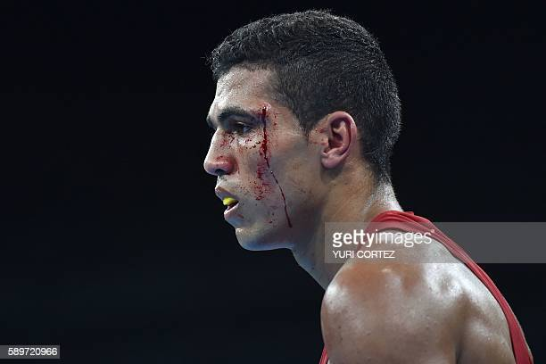 Blood drips down Morocco's Mohammed Rabii's face as he fights Uzbekistan's Shakhram Giyasov during the Men's Welter Semifinal 1 match at the Rio 2016...