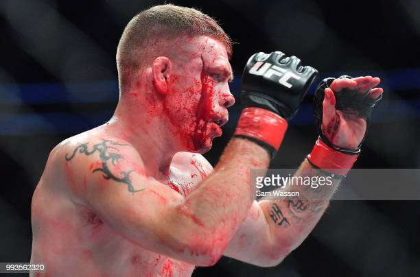 Blood drips down Paul Felder's face as he stands in the octagon during his welterweight fight against Mike Perry at TMobile Arena on July 7 2018 in...