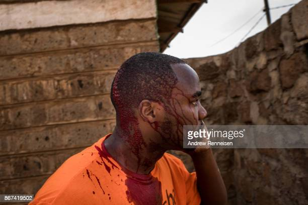 Blood drips down the face of Haron Boi after a group of men threw rocks and attempted to loot his home in the Kawangware slum on October 28 2017 in...