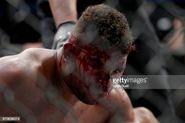 Blood drips from the face of Alistair Overeem of England after his match against Curtis Blaydes in their heavyweight bout during the UFC 225...
