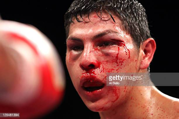Blood flows out of the left eye of Cesar Cano of Mexico as Cano takes on Erik Morales of Mexico in their WBC super lightweight title fight at the MGM...