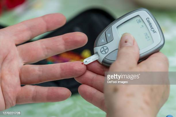Blood glucose measurement is being performed on July 28, 2020 in Pfullendorf, Germany.