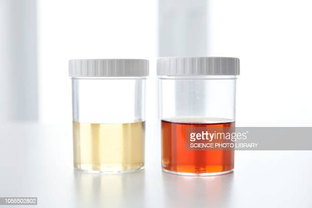 blood in human urine in sample pot - urine stock pictures, royalty-free photos & images