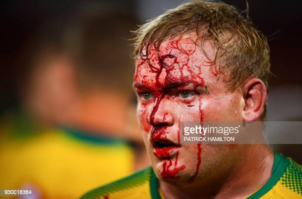 TOPSHOT Blood runs down the face of Northern Bulls' Adriaan Strauss during the Super Rugby match between Australia's Queensland Reds and South...