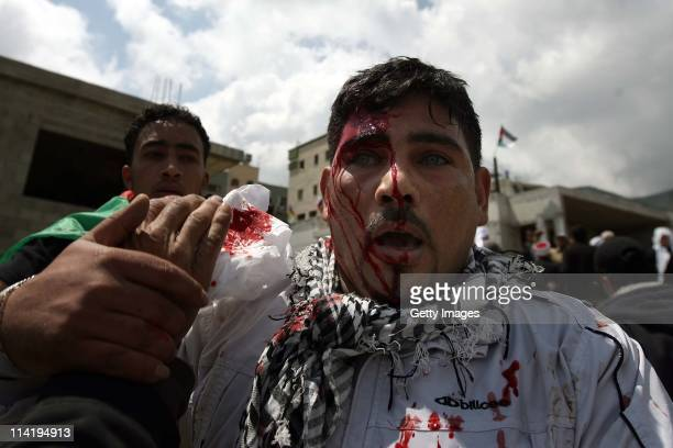 Blood runs down the head of an injured man as Palestinian protesters infiltrate the IsraelSyria border on May 15 2011 near the Druze village of...