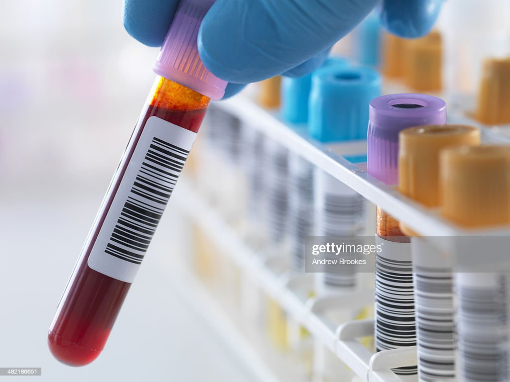 A blood sample being held with a row of human samples for analytical testing including blood, urine, chemistry, proteins, anticoagulants and HIV in lab : Stock Photo