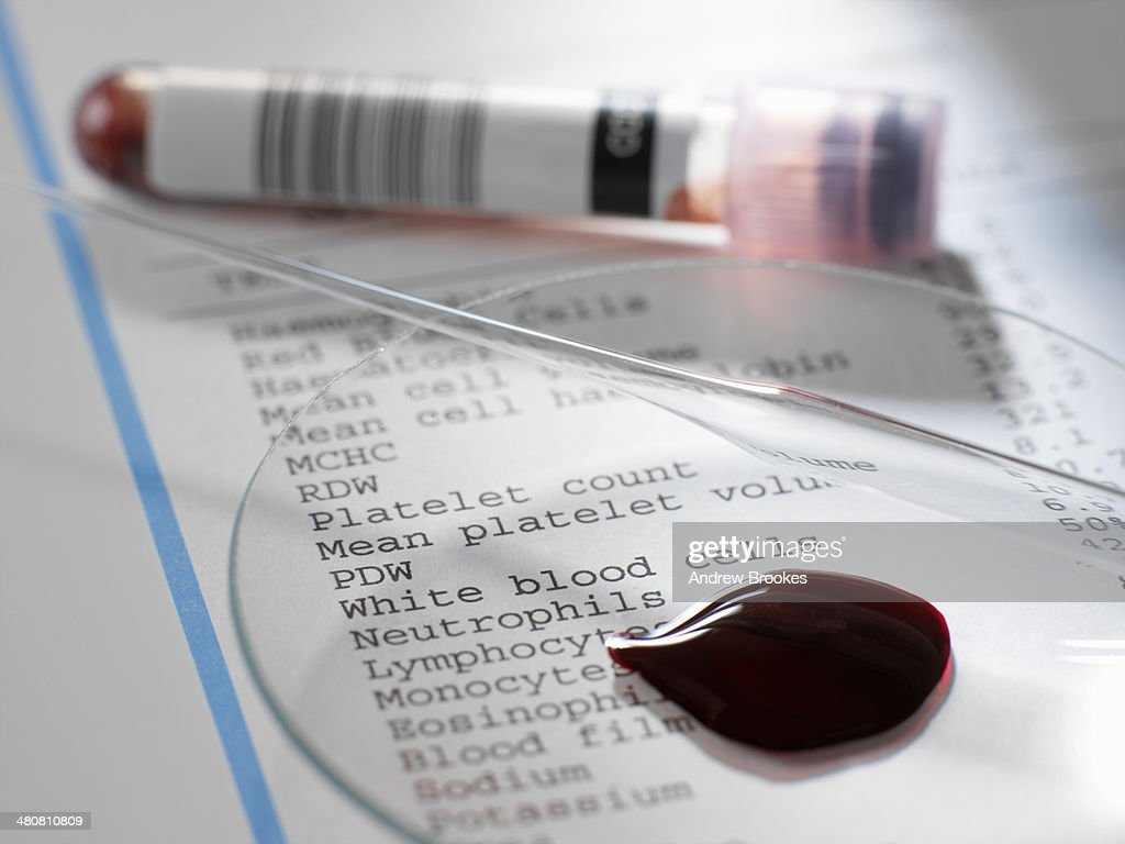 Blood sample with results of clinical analysis of the blood component : Stock Photo