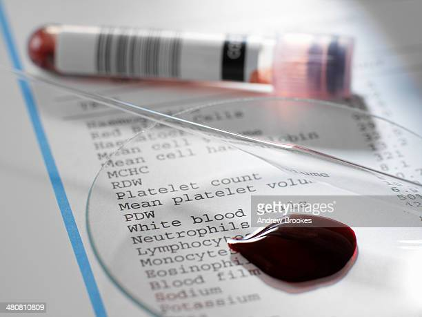 Blood sample with results of clinical analysis of the blood component