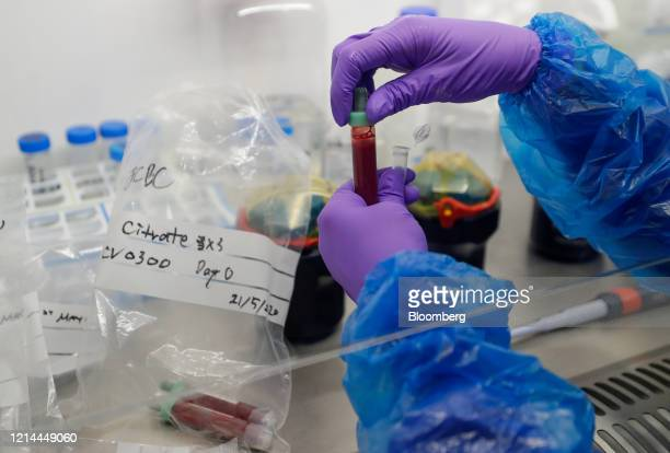 Blood samples from coronavirus patients are prepared for analysis as part of the TACTIC-R trial, in the Blood Processing Lab in the Cambridge...