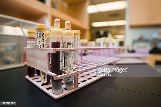 Blood Samples in Tray 1
