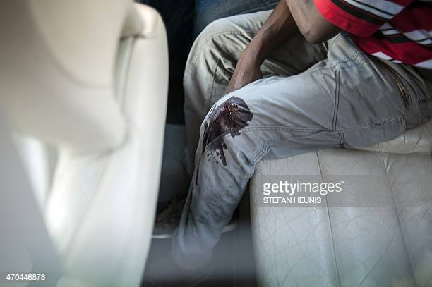 Blood soaks through the pants of a wounded supporter of the Economic Freedom Fighters party as he sits in a car before being evacuated to a hospital...