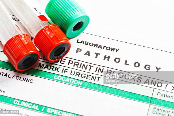 Blood specimen tubes on form for ordering lab tests
