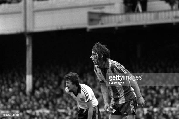 Blood streaming from John Wile's cut head after the West Bromwhich Albion captain had been in collision with Ipswich Town's Brian Talbot whose head...