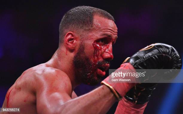 Blood streams from a cut on James DeGale's right cheek during his IBF super middleweight title fight against Caleb Truax at The Joint inside the Hard...
