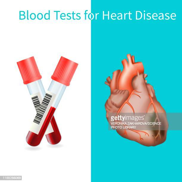 blood tests for heart disease, illustration - myocardium stock photos and pictures