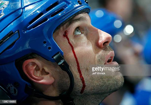 Blood trickles down the cheek of Aaron Rome of the Vancouver Canucks as he looks on from the bench during their NHL game against the San Jose Sharks...