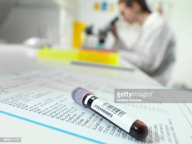 Blood tube sitting on blood results with technician at microscope in lab