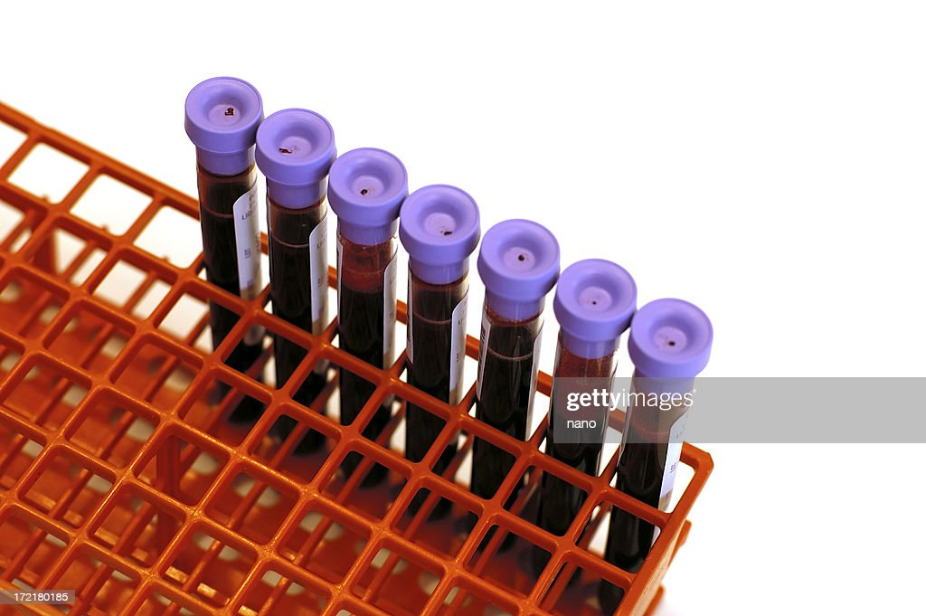 blood tubes in rack : Stock Photo