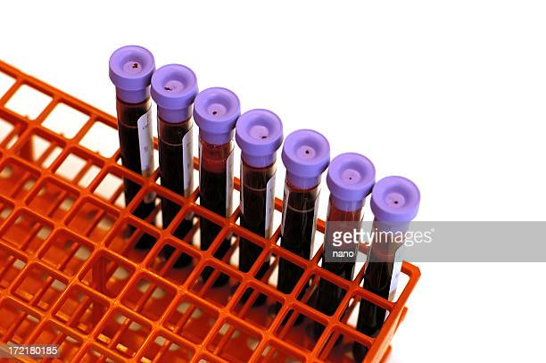 blood tubes in rack - blood clot stock pictures, royalty-free photos & images