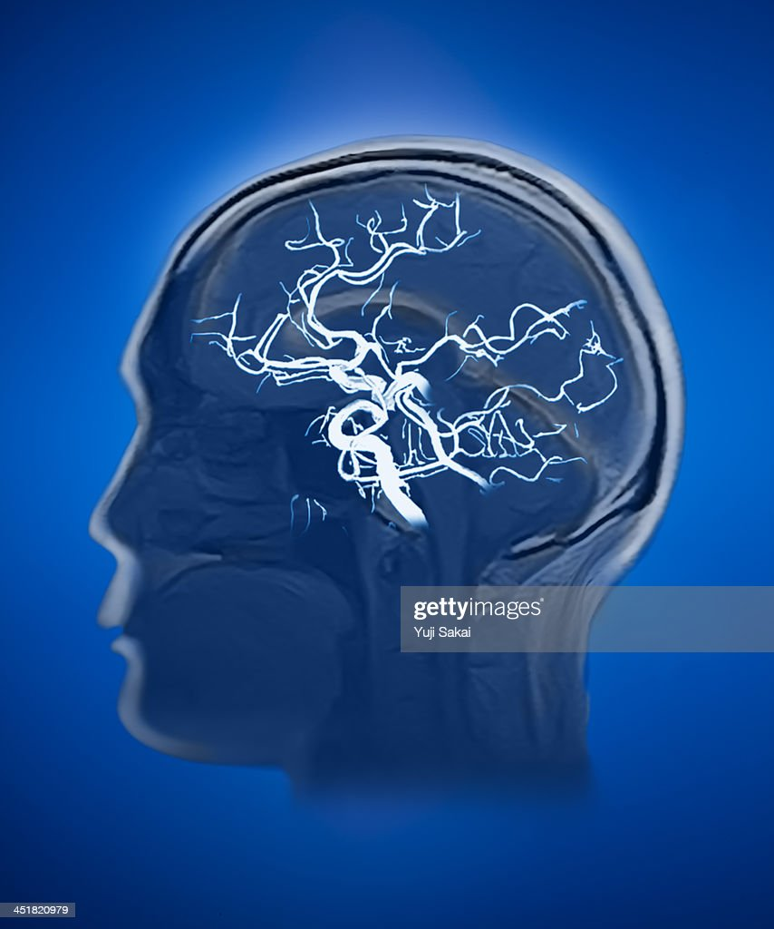 blood vessel with human brain MRI : Stock Photo