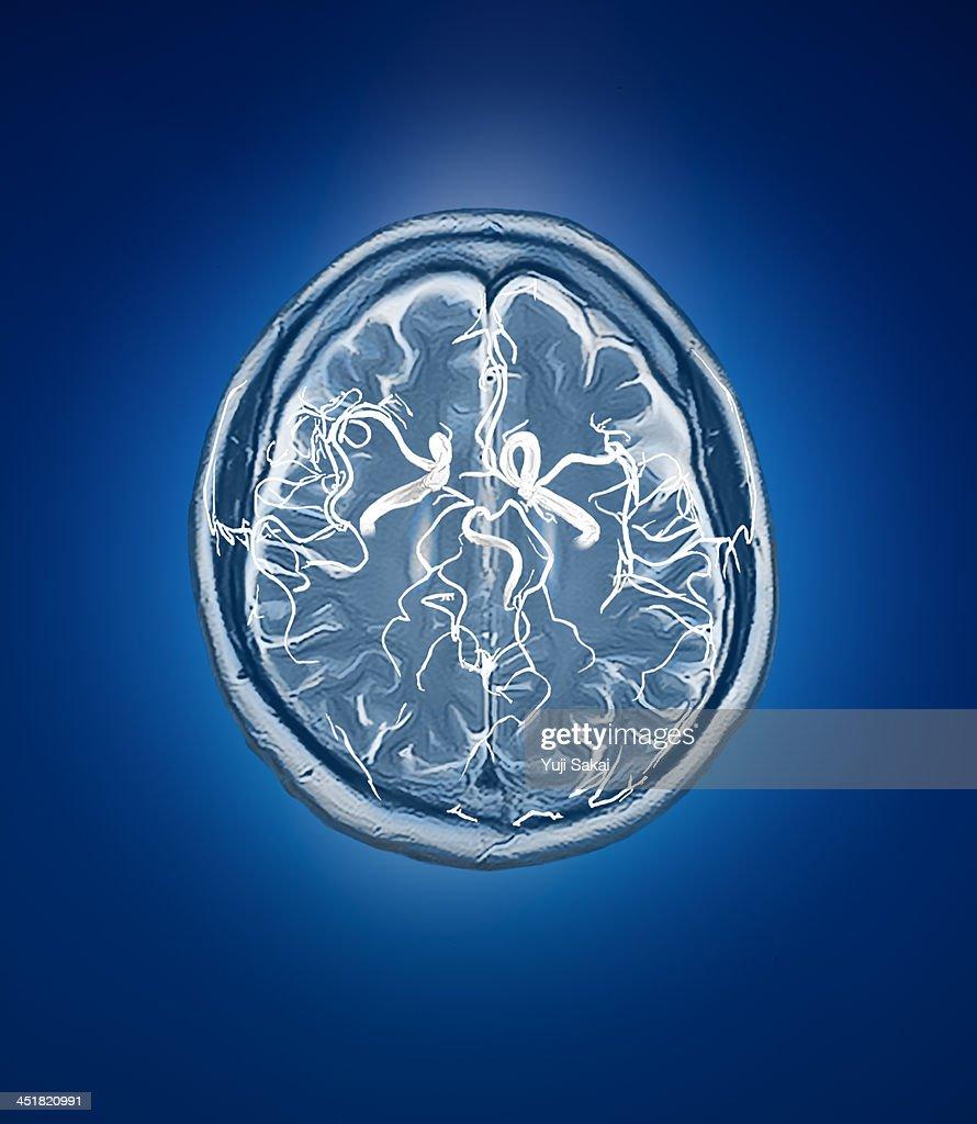 blood vessel with human brain MRI : Stock Photo