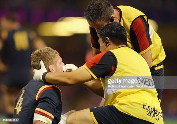 A bloodied Bradley Davies of Wales is given treatment during the 2015 Rugby World Cup Pool A match between Wales and Fiji at the Millennium Stadium...