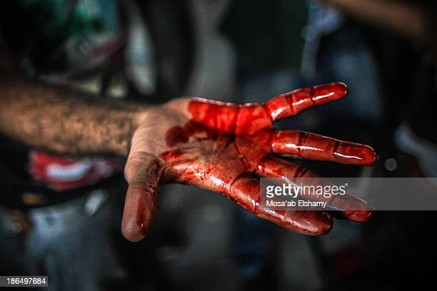 CONTENT] A bloodied hand is displayed during the violent clashes at Ramses square between security forces and supporters of ousted president Mohamed...