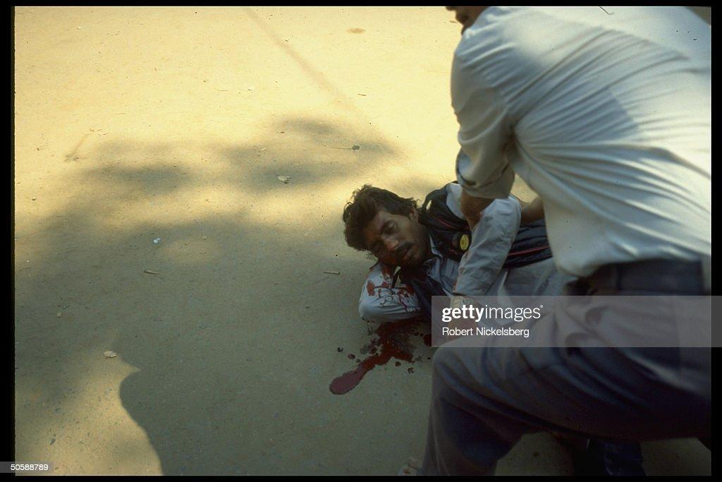 Bloodied Hindu rioting victim, hurt in r : News Photo