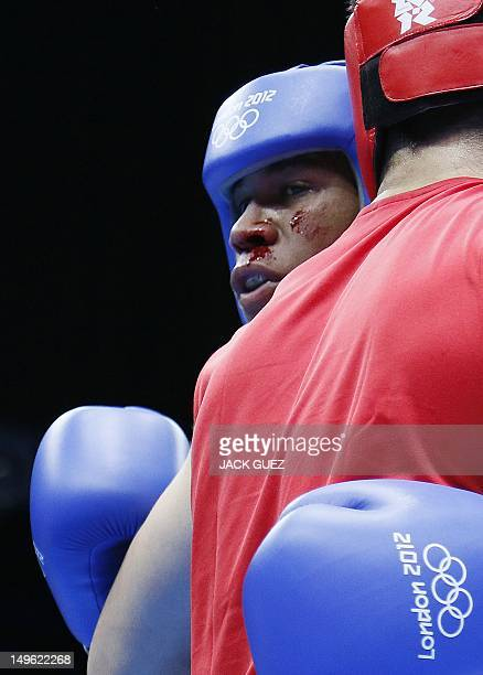A bloodied Michael Hunter Ii of the USA clinches with Artur Beterbiev of Russia during their round of 16 Heavyweight boxing match of the London 2012...