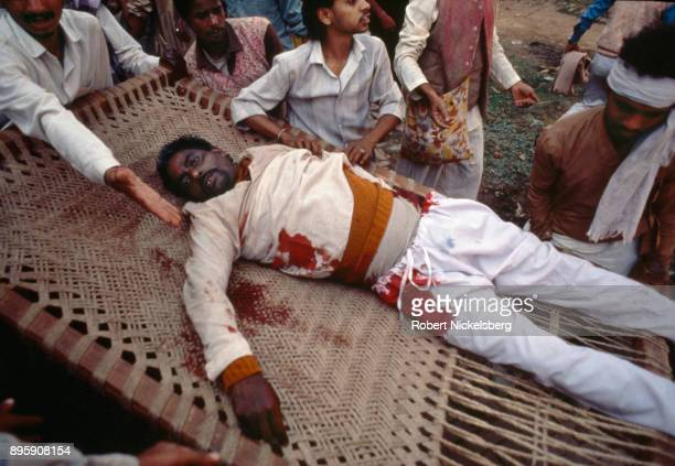 Bloodied Muslim civilian is carried to a hospital following clashes with Hindu fundamentalist mobs and rioting over the destruction of the Babri...