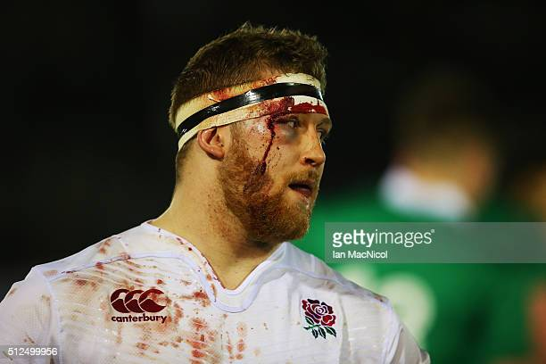 A bloodied Tom West of England at the final whistle during the U20 Six Nations Championship match between England and Ireland at Kingston Park on...