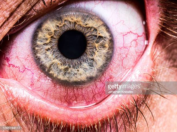 bloodshot eye - problems stock pictures, royalty-free photos & images