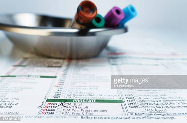 bloodwork requisition form and vials of blood samples in kidney dish - prostate gland stock pictures, royalty-free photos & images