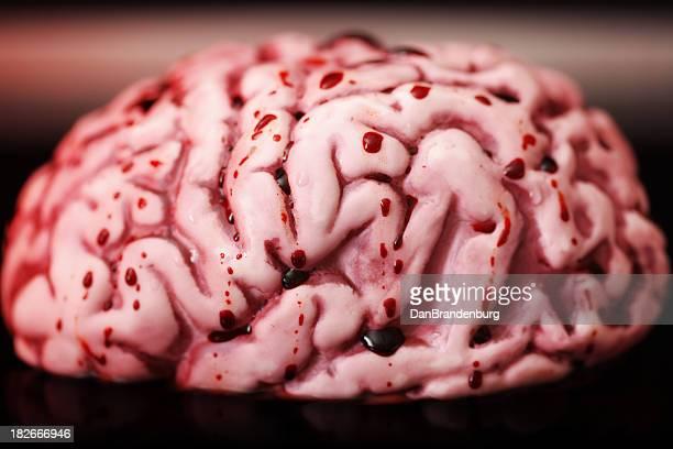bloody cerebro - autopsia fotografías e imágenes de stock