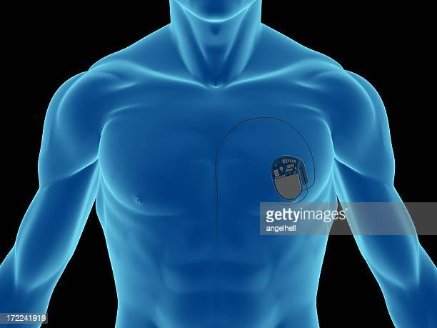 Blue illustration of a man's chest showing pacemaker