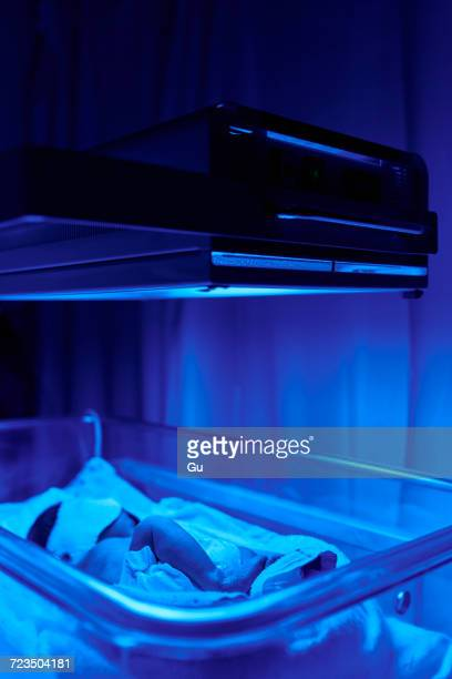 Blue light treatment for baby with jaundice