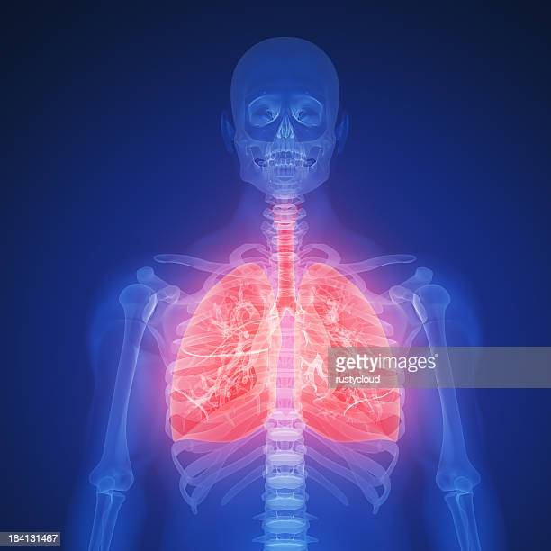 Blue X-ray silhouette of lung infection with red highlights