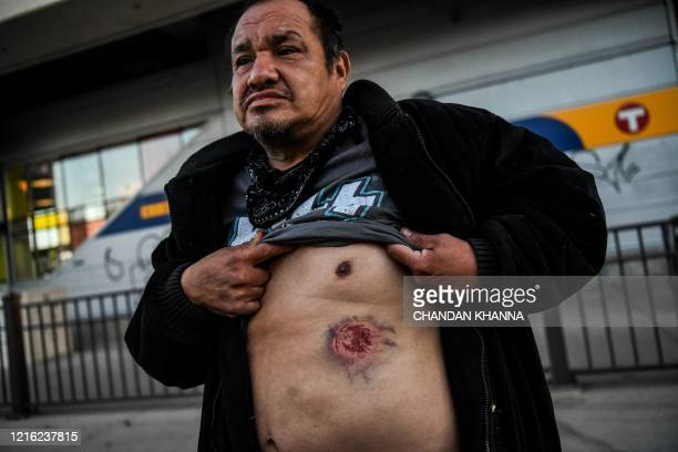 TOPSHOT Boaz Brownader 46 shows a mark he says was caused by tear gas shell during a demonstration in Minneapolis Minnesota on May 29 2020 over the...